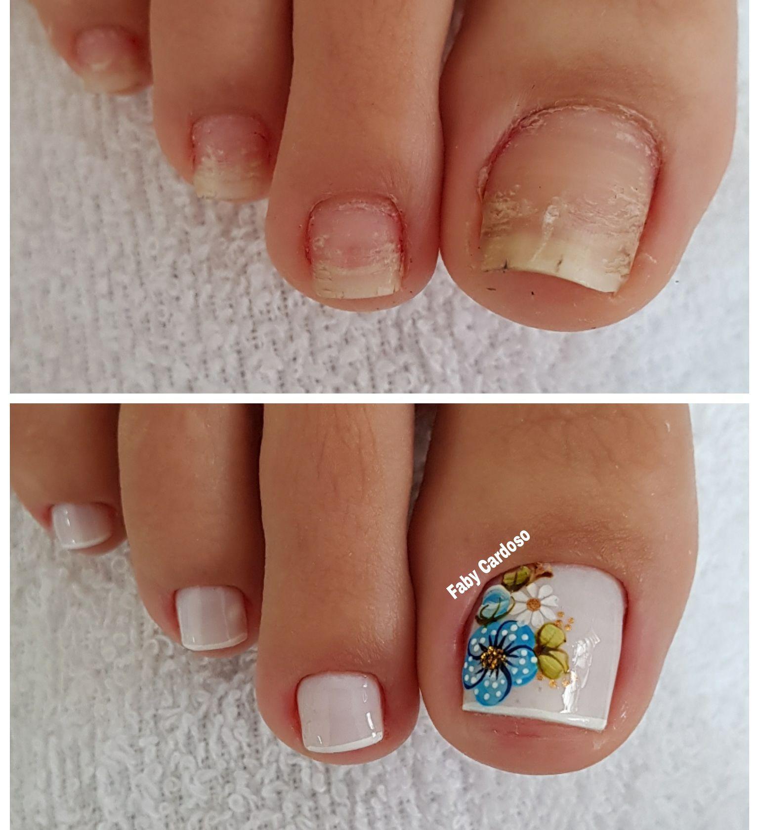 Unhas dos pés com cores e eamaltes perfeitos2.4