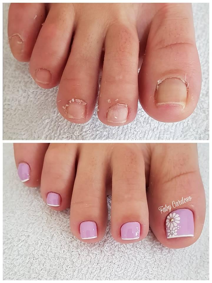 Unhas dos pés com cores e eamaltes perfeitos3.1