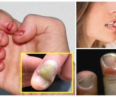 15 Formas caseiras para deixar de roer as unhas